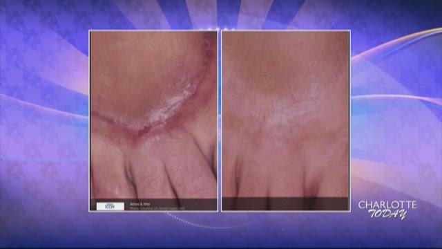 Reduce the signs of stretch marks and scarring