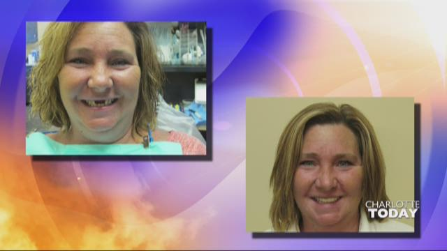 How a new smile changed this woman's life